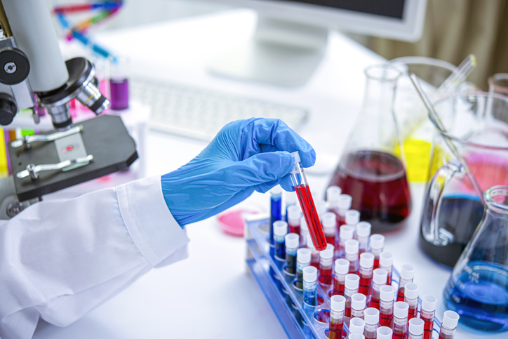 Lab technician holding blood tube test sample in laboratory.